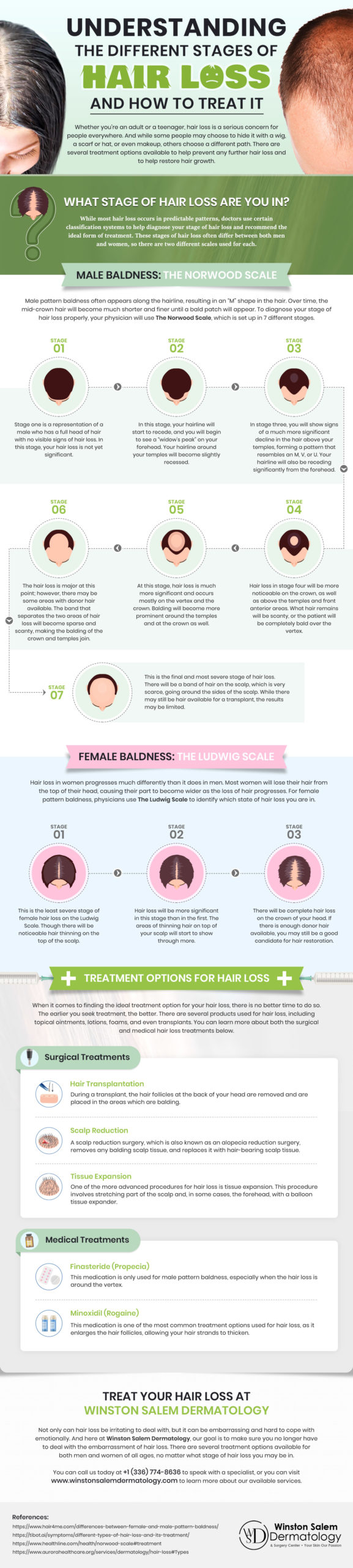 Understanding the Different Stages of Hair Loss and How to Treat It